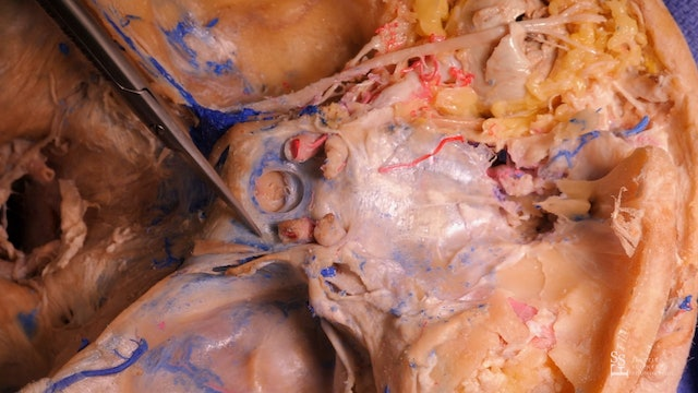 Intracranial Dissection