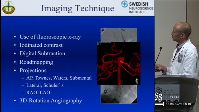 Neuroangiographic Anatomy