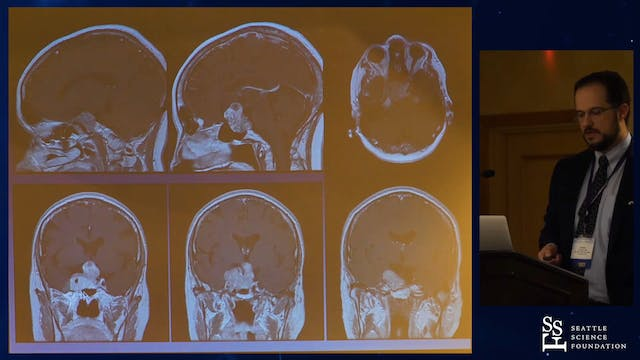 Approaches to Cavernous Sinus and Mec...
