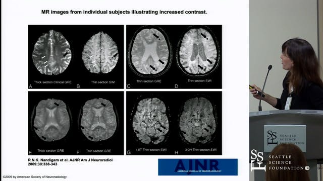 Cerebral Microbleeds, Cerebral Amyloi...