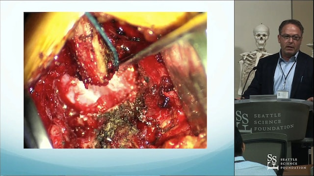 Practical Use of Interlaminar Stabilization In a Spine Surgeon's Practice