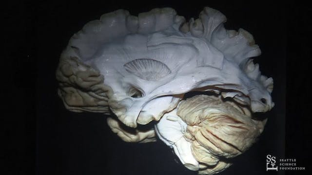 Surgical Pearls in Brain Anatomy