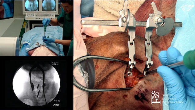 Anterior Cervical Disc Replacement