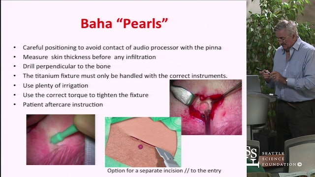 Surgical Tips & Techniques for BAHA