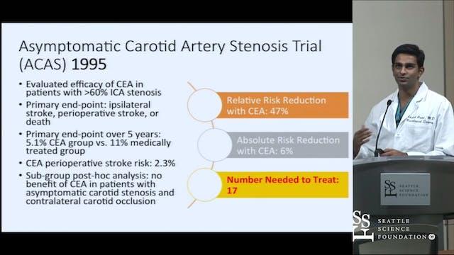 Carotid Endarterectomy & Stenting