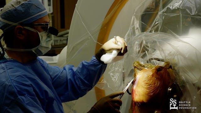 Deep Brain Stimulation Surgery