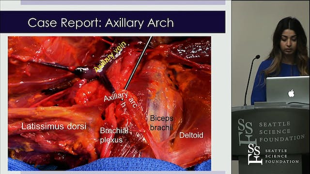 Role of Axillary Arch Variant