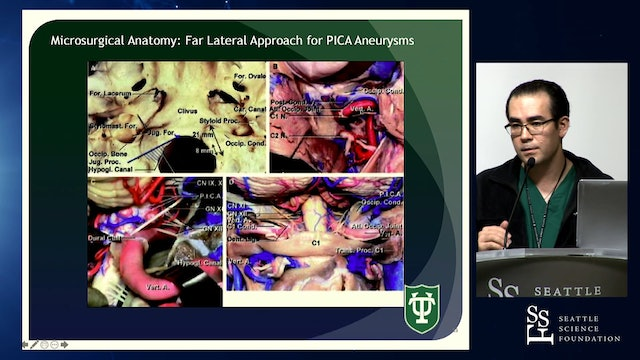 Far Lateral Craniotomy for PICA Aneurysms, Vertebral Basilar Junction
