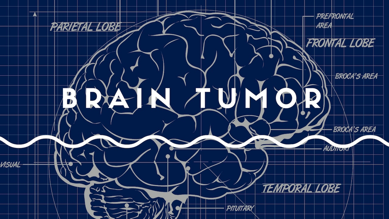 Innovative Approaches to Brain Tumor Management