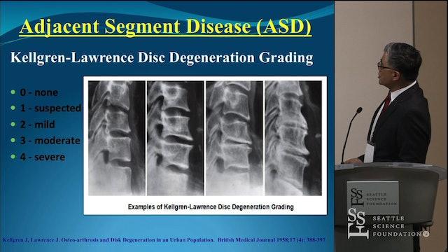 Cervical Surgery - ACDF vs Artifical Disc