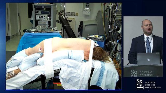 Retroperitoneal Partial Nephrectomy