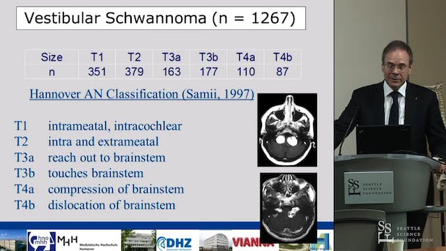 Acoustic Neuroma - Decision making, S...