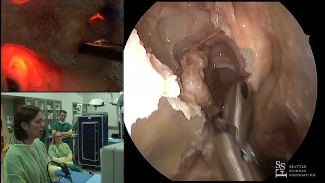 Prosection - Sella Turcica, Suprasellar Approach & Cavernous Sinus
