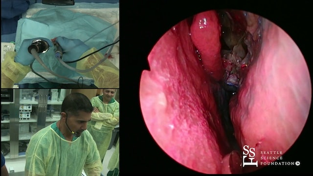 Endoscopic Medial Maxillectomy & Inferior Turbinate Reduction Demo