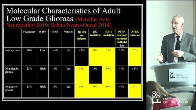 Management of Gliomas: Evolving Progress