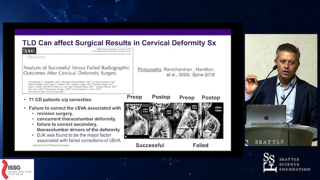 Can We Define Clinically Relevant DJK in Cervical Deformity Surgery