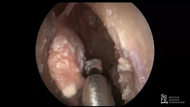 Prosection - Orbital & Optic Nerve Decompression, Endoscopic DCR