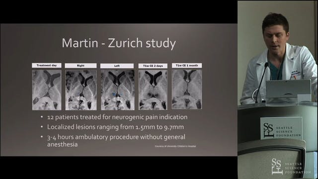 MRI Guided Focused Ultrasound in Neur...