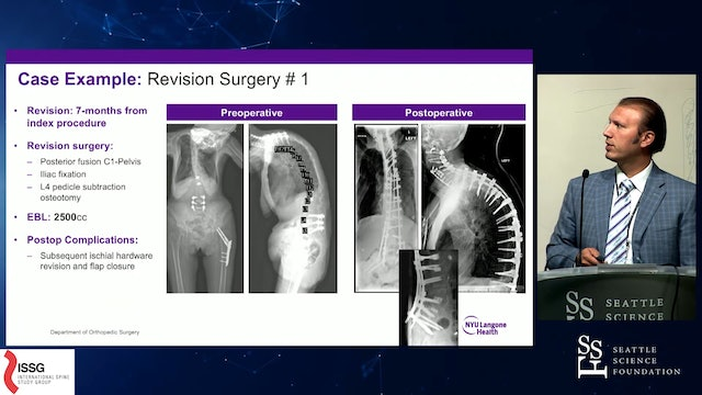 Optimizing Outcomes in Adult Cervical Spine Deformity Surgery
