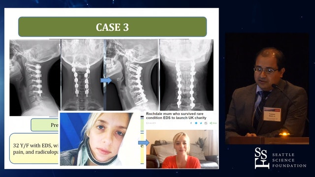 Restoring Sagittal alignment in Cervical Spine