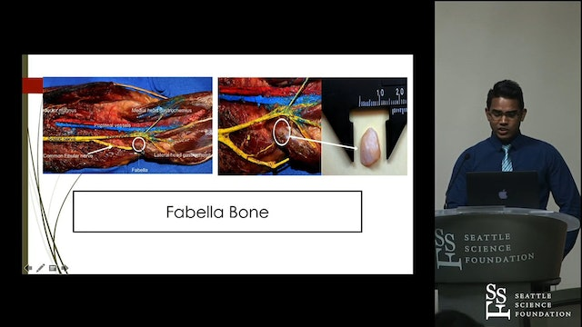 Comprehensive Review of the Fabella Bone