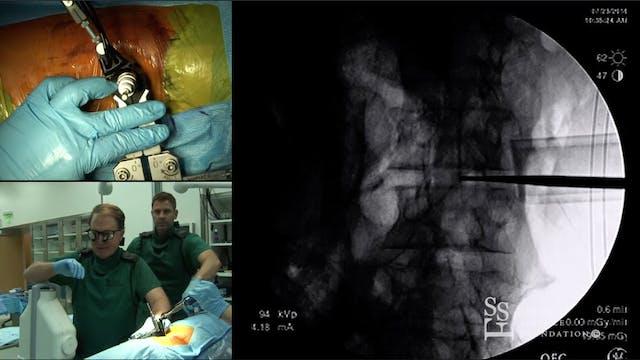 Oblique Lumbar Interbody Fusion