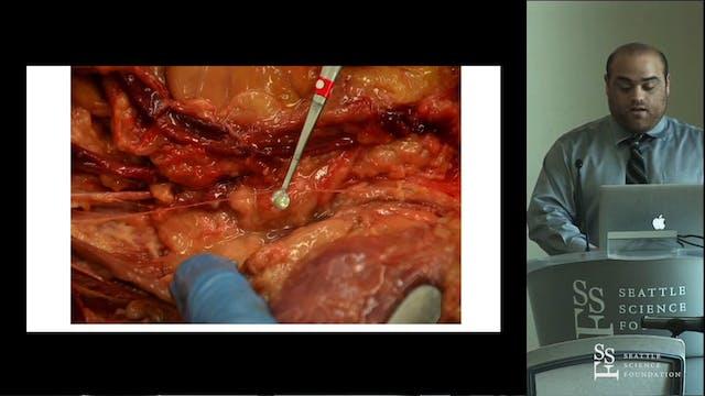 Accessory Obturator Nerve