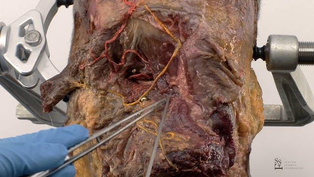 Craniocervical Junction - Posterior