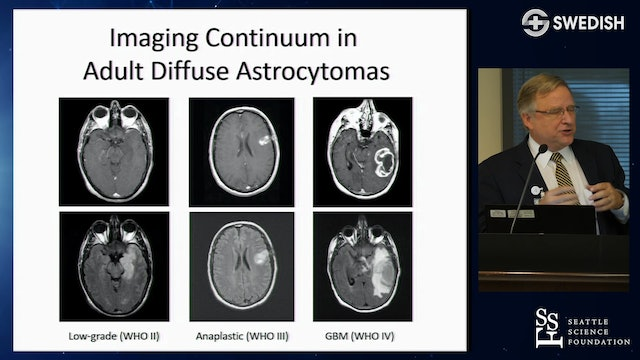 Imaging Continuum in Adult Diffuse Astrocytomas
