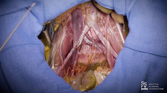 Abdominal Cavity Part IV