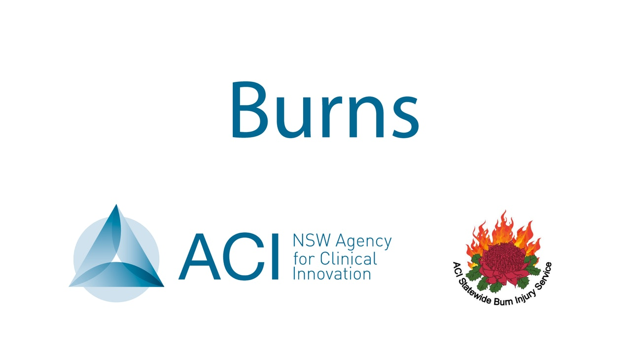 Agency for Clinical Innovation - Burns