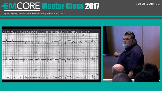 Ischaemia in ECG Assoc Prof Peter Kas