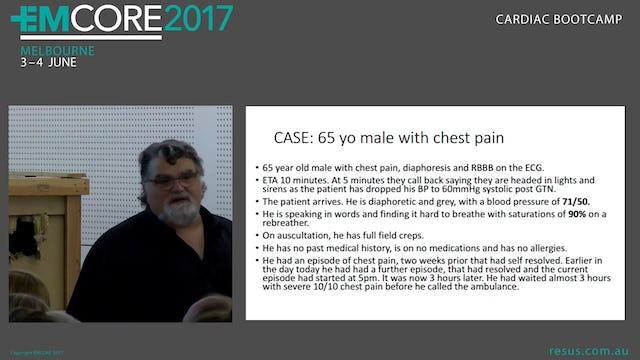 Cardiogenic Shock Case Assoc Prof Peter Kas