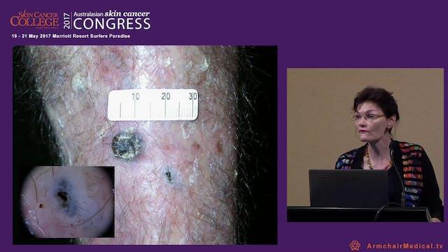 Golden rules of skin surgery Dr Helen...