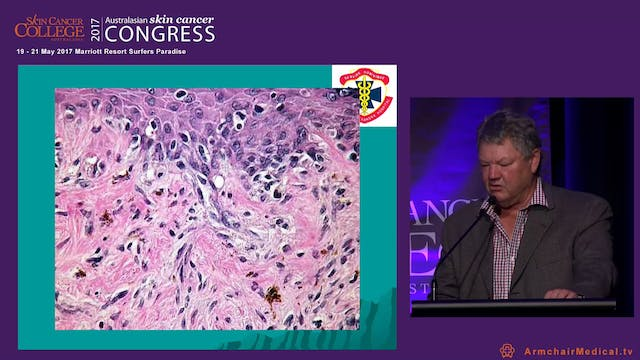 Ajuvant radiotherapy for squamous and basal cell carcinoma - When to refer Prof Bryan Burmeister