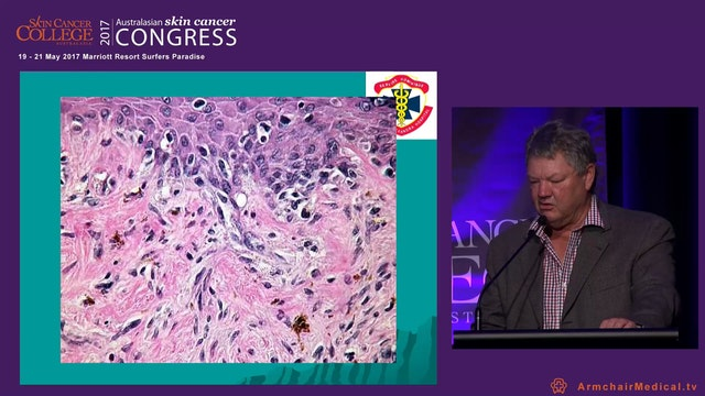 Ajuvant radiotherapy for squamous and...