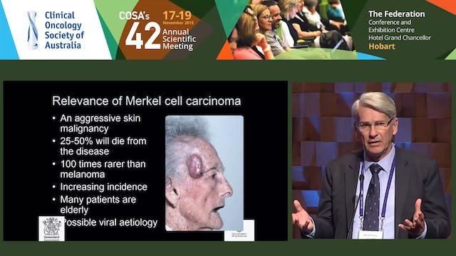 Michael G Poulsen Merkel Cell Carcinoma of the skin- Research into a rare malignancy.