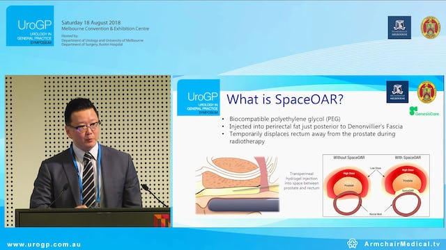 Brachytherapy for GP's Understanding the Basics, Dr Michael Chao