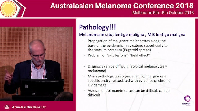 Challenges of special subtypes of melanoma - ALM, desmoplastic, neurotropic, extensive LM Michael Henderson