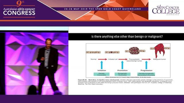 Borderline lesions or borderline pathologists Dr Ian Katz