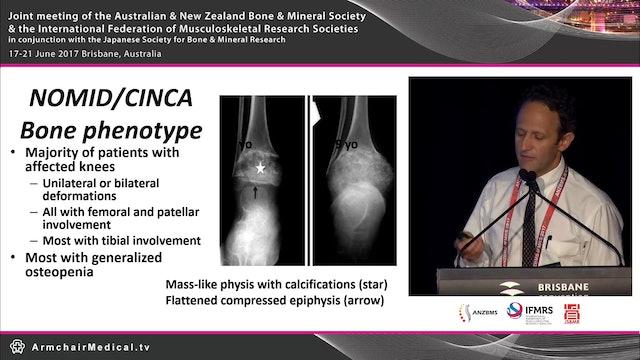 Mechanisms of inflammation and bone disease in CAPS Prof Hal Hoffman