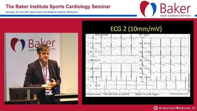 Case: Female marathon runner with chest pain Assoc Prof André La Gerche