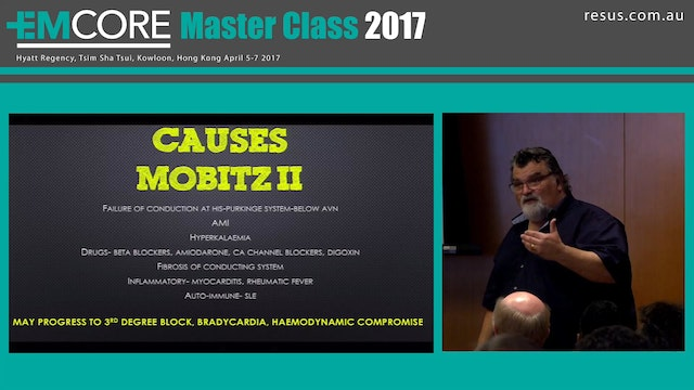 Don't miss the Mobitz Assoc Prof Pete...