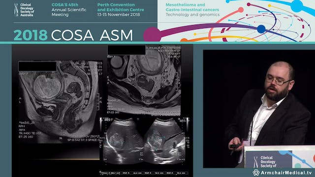MDT panel discussion Management of colorectal cancer and concurrent liver mets