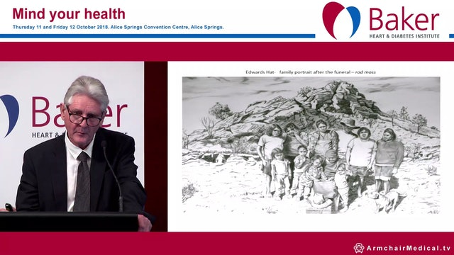 Mourning, melancholia and the Echo effect Dr Craig san Roque