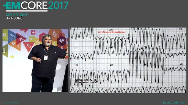 ECGs that can kill if you miss them A...
