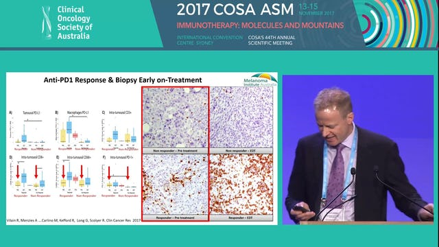 Predictive markers of response and resistance to immunotherapies in melanoma Prof Richard Scolyer