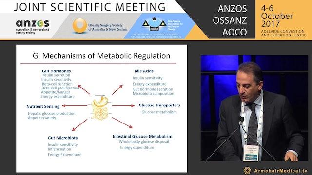 Developments in metabolic surgery  now and future - Prof Francesco Rubino