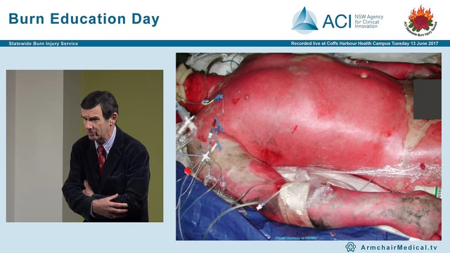Burns Epidemiology, Response & Early Management Dr John Harvey, Paediatric Surgeon & Director Burn Unit CHW