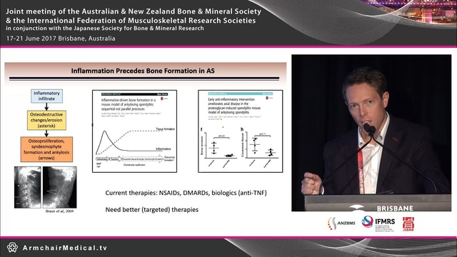 Emerging concepts in immunopathogenesis of ankylosing spondylitis Dr Tony Kenna